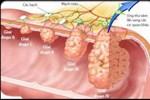 Làm thế nào để phát hiện sớm ung thư dạ dày