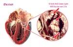 Cơ chế sinh bệnh và dự phòng bệnh gút - HHK
