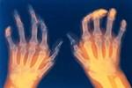 Phương pháp mới điều trị viêm khớp dạng thấp bằng thuốc sinh học (Entanercept) - HHK