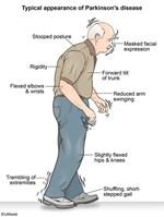 Có gì mới trong chẩn đoán và điều trị bệnh Parkinson – HHK